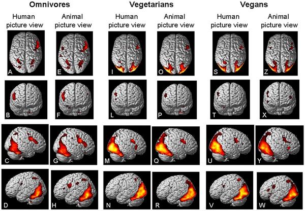 Unterschiedliche Gehirnaktivitäten bei Veganern, Vegetariern und Omnivoren